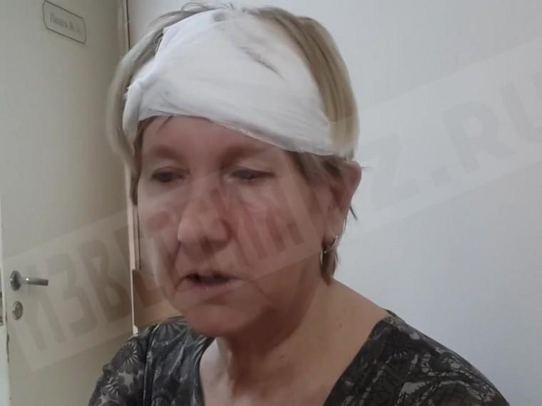 Кондуктор рассказала, как пьяная девочка ударила еемолотком поголове