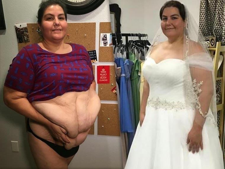 Лишним будет. Вдвоепохудевшая америкнка срезала себе 8 килограммов «обвисшей лишней кожи»