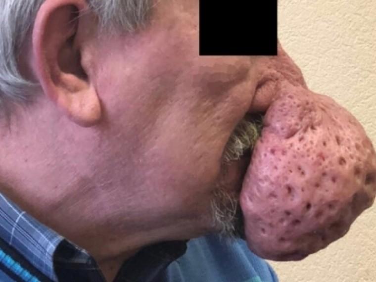 Фото: Петербургские медики отрезали петербуржцу полукилограммовую часть носа