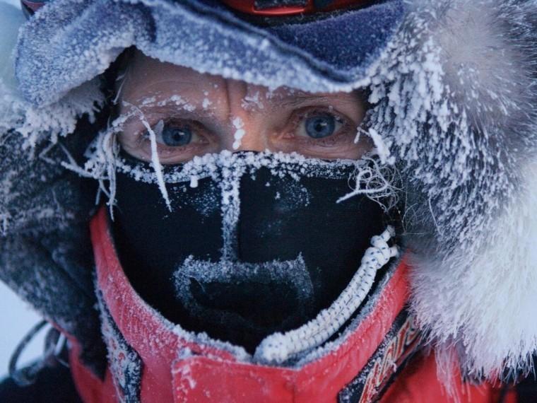 Медики Петербурга иМосквы ждут волну обморожений ипереохлаждений. Как ихпережить?